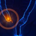 Causas emocionales de Apendicitis – Itis…