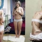 La Delgadez y Anorexia – Causas emocionales