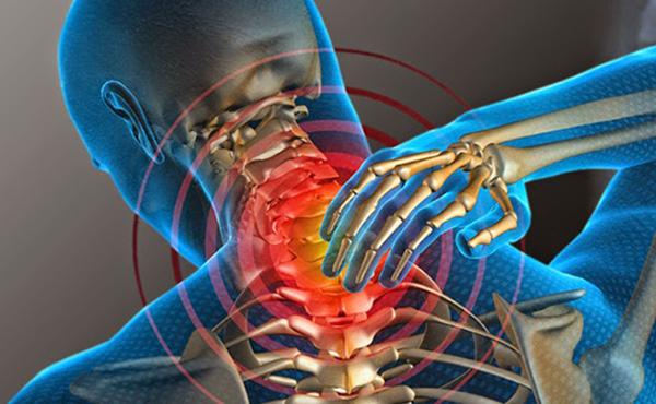 Causas emocionales del dolor de cuello