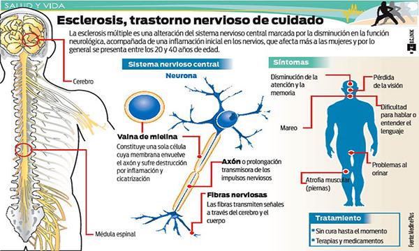 Causas emocionales de la esclerosis