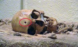Cráneos con orificio de bala