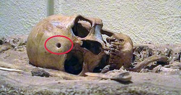 Cráneos con orificio de bala hace miles de años